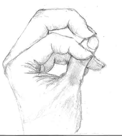 Michelangelo\u0027s Arthritis